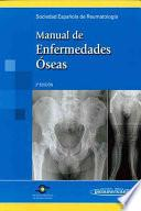 Manual De Enfermedades Oseas / Bone Diseases Manual